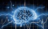 大脑中有关精神分裂症类型的物理证据